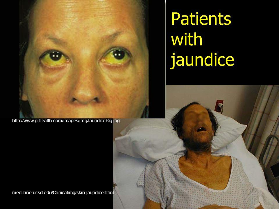 Patients with jaundice medicine.ucsd.edu/Clinicalimg/skin-jaundice.html.