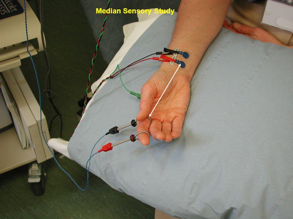 Median Sensory Study