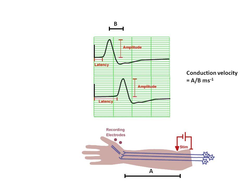 A B Conduction velocity = A/B ms -1