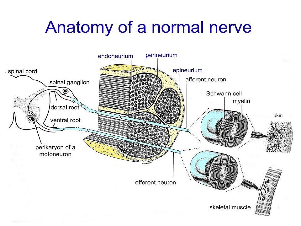 Brandner S - NHNN Normal nerveCIDP Nerve from real life – normal and damaged