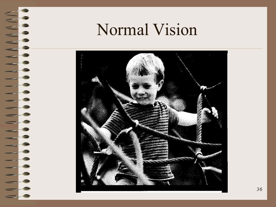 36 Normal Vision