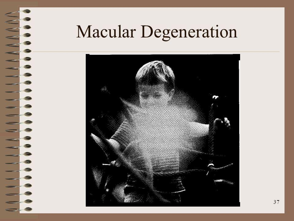37 Macular Degeneration