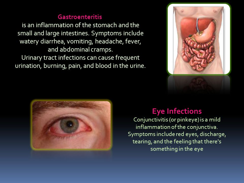 Gastroenteritis is an inflammation of the stomach and the small and large intestines.