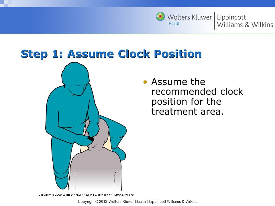 Copyright © 2013 Wolters Kluwer Health | Lippincott Williams & Wilkins Step 1: Assume Clock Position Assume the recommended clock position for the treatment area.