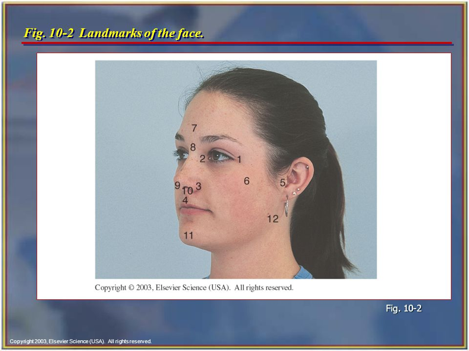 Copyright 2003, Elsevier Science (USA). All rights reserved. Fig. 10-2 Landmarks of the face. Fig. 10-2