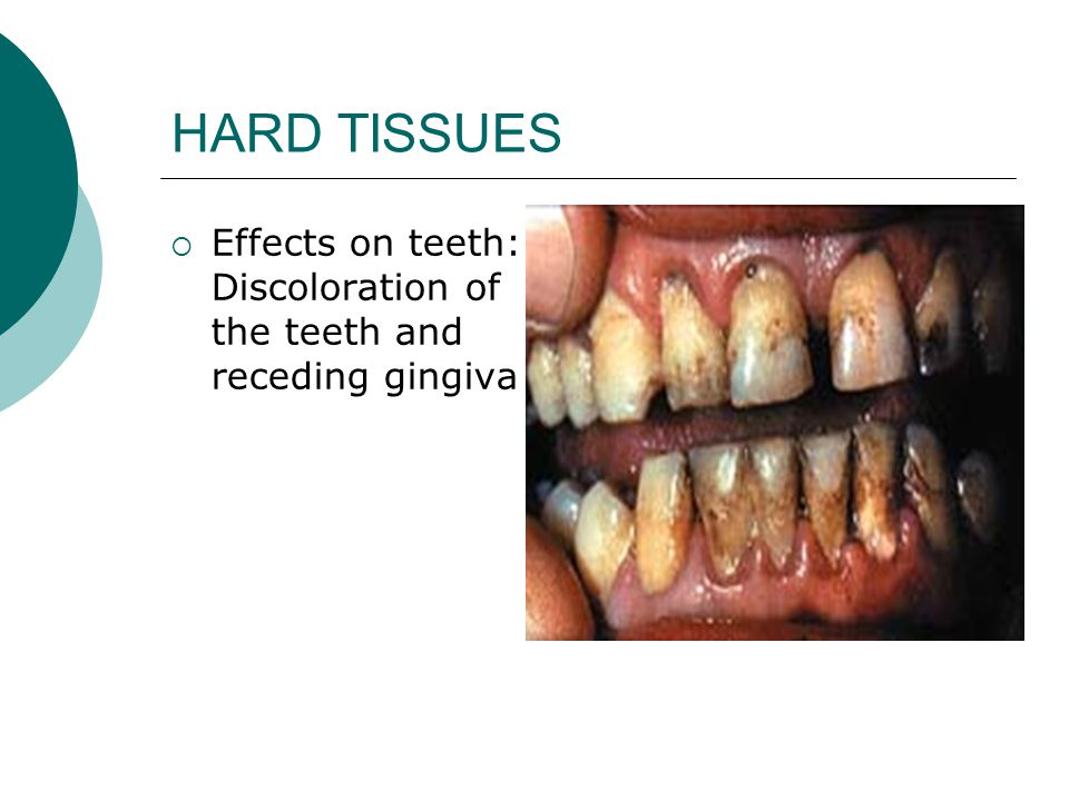 HARD TISSUES  Effects on teeth: Discoloration of the teeth and receding gingiva