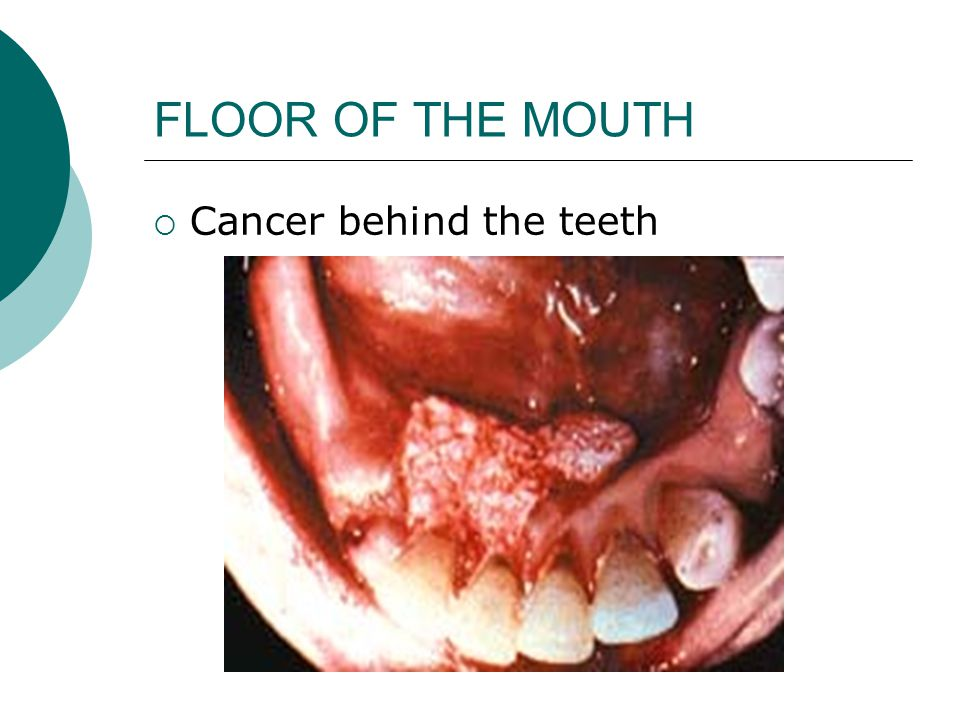 FLOOR OF THE MOUTH  Cancer behind the teeth