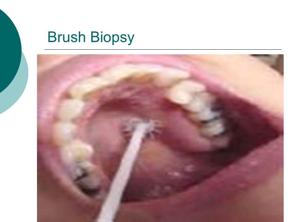 Brush Biopsy