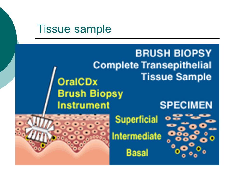 Tissue sample