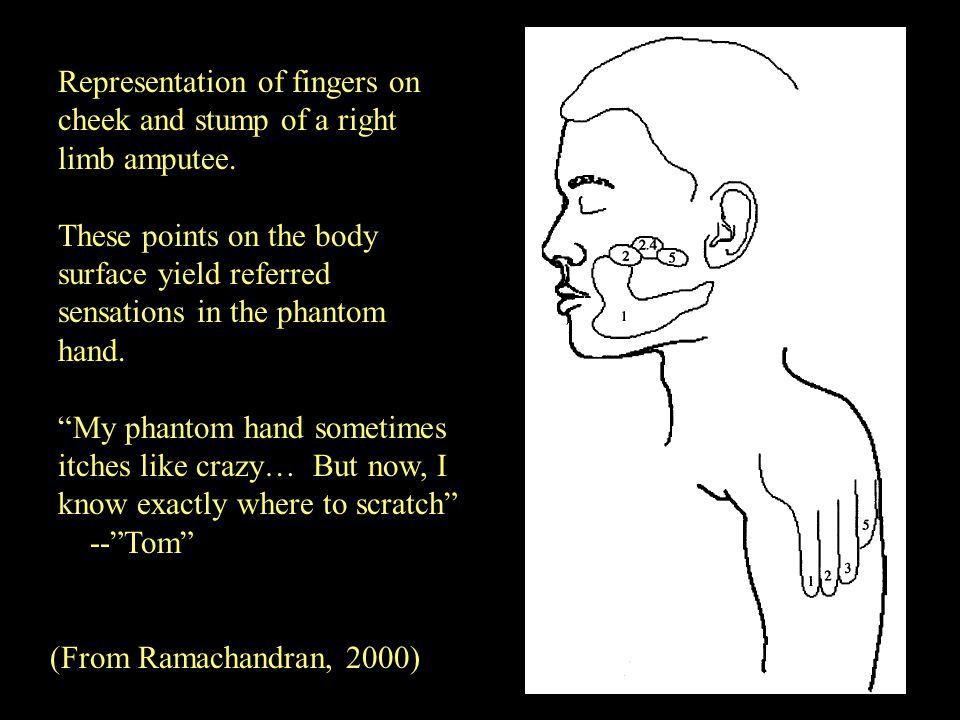 Representation of fingers on cheek and stump of a right limb amputee. These points on the body surface yield referred sensations in the phantom hand.
