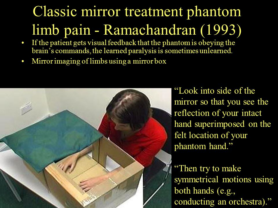 Classic mirror treatment phantom limb pain - Ramachandran (1993) If the patient gets visual feedback that the phantom is obeying the brain's commands,