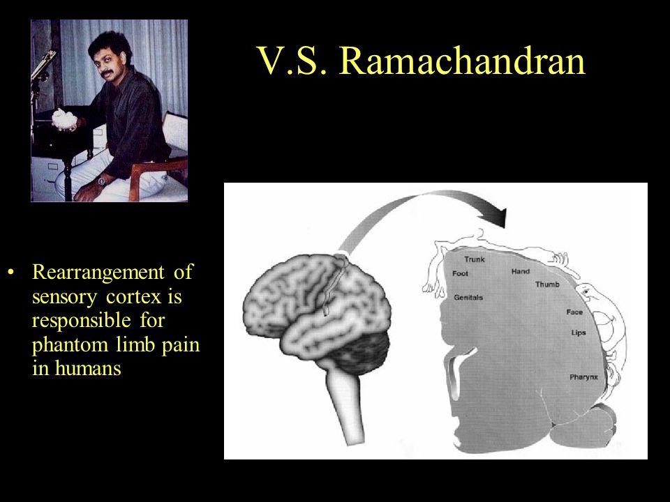 V.S. Ramachandran Rearrangement of sensory cortex is responsible for phantom limb pain in humans