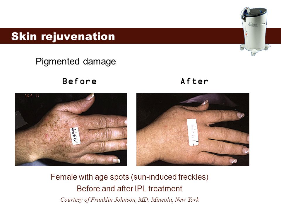 Pigmented damage Skin rejuvenation Female with age spots (sun-induced freckles) Before and after IPL treatment Courtesy of Franklin Johnson, MD, Mineo