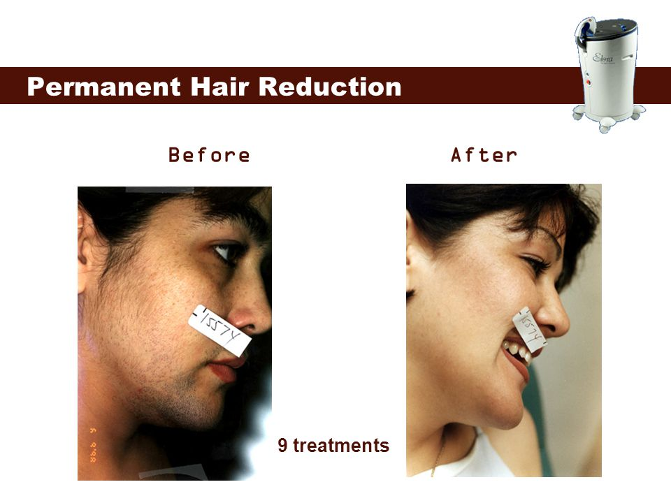 Permanent Hair Reduction Before 9 treatments After