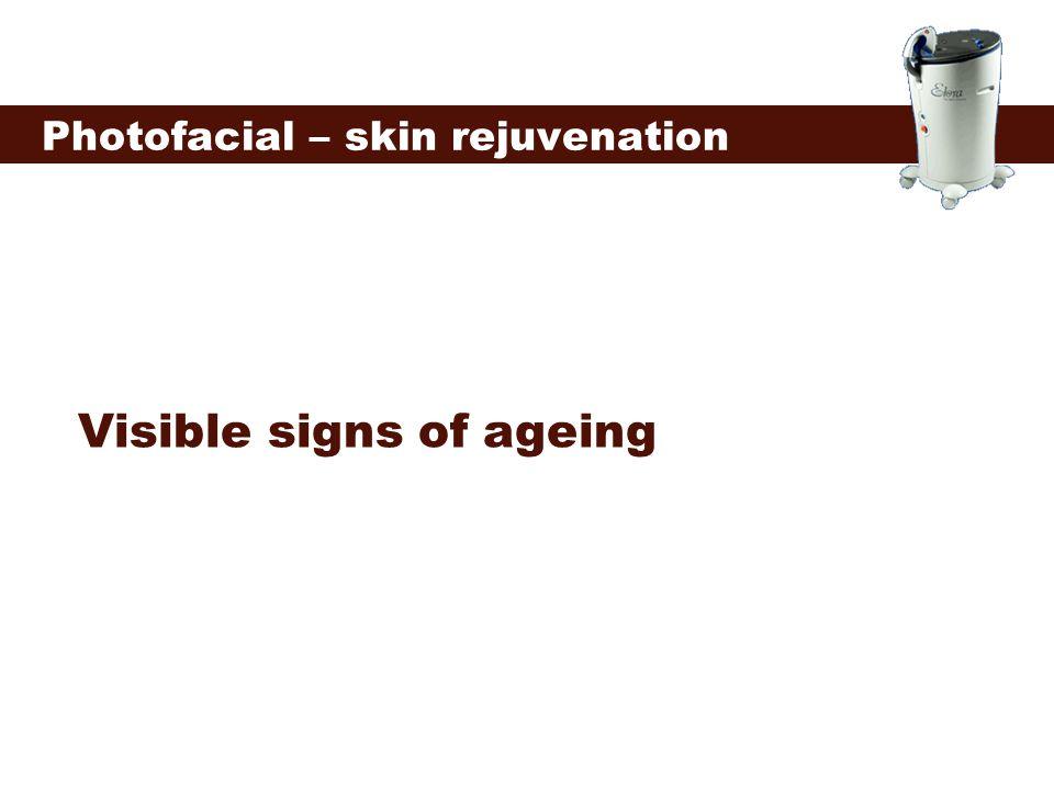 Visible signs of ageing Photofacial – skin rejuvenation