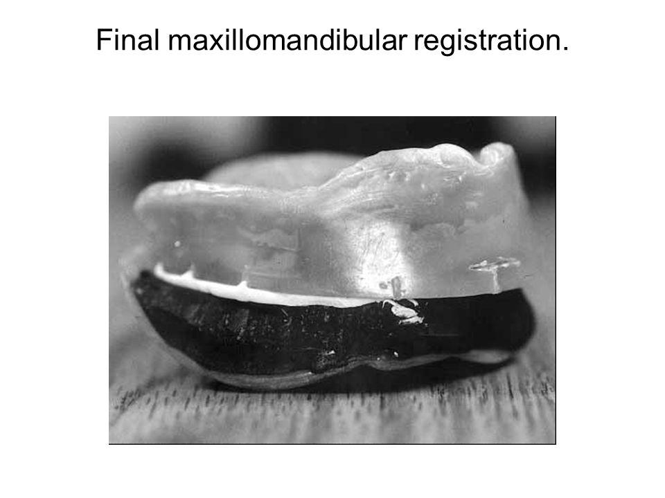 Final maxillomandibular registration.