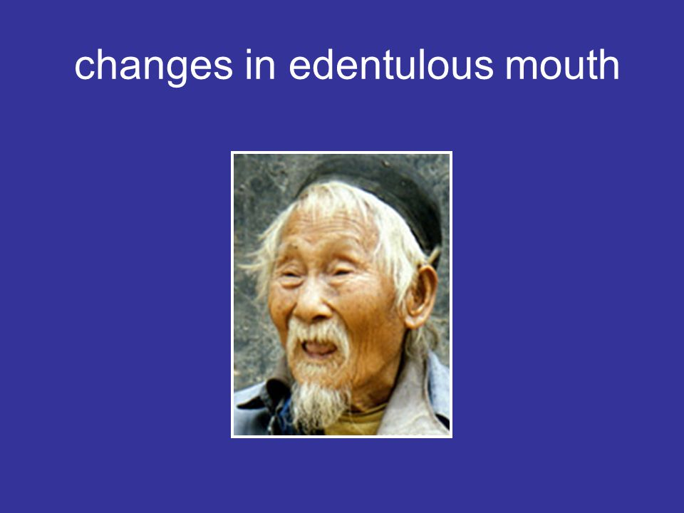 changes in edentulous mouth