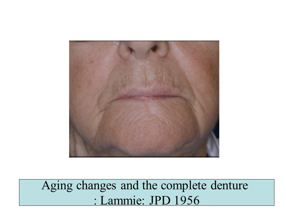 Aging changes and the complete denture : Lammie: JPD 1956