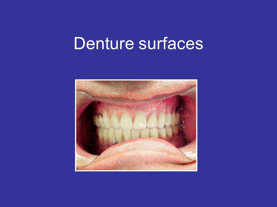 Denture surfaces