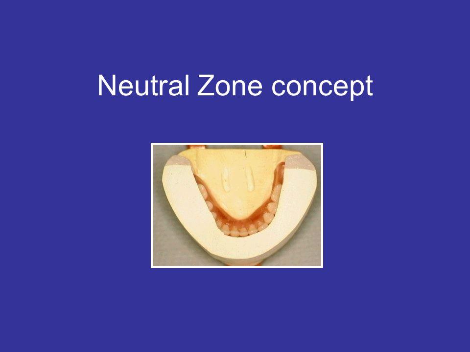 Neutral Zone concept
