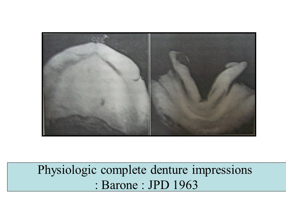 Physiologic complete denture impressions : Barone : JPD 1963