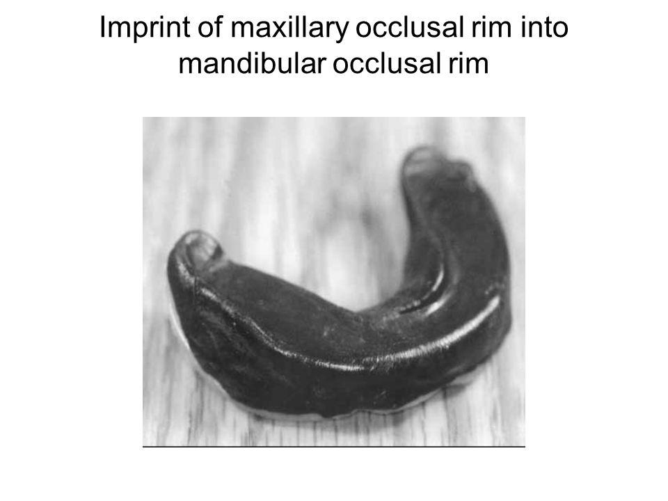 Imprint of maxillary occlusal rim into mandibular occlusal rim