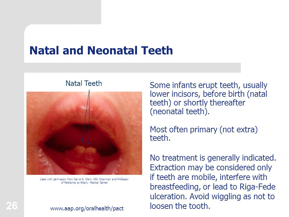 26 www.aap.org/oralhealth/pact Natal and Neonatal Teeth Some infants erupt teeth, usually lower incisors, before birth (natal teeth) or shortly therea
