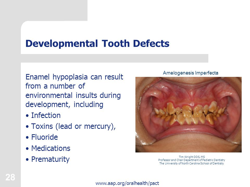 28 www.aap.org/oralhealth/pact Developmental Tooth Defects Enamel hypoplasia can result from a number of environmental insults during development, inc