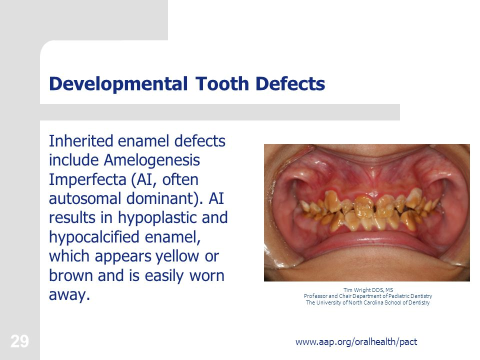 29 Developmental Tooth Defects Inherited enamel defects include Amelogenesis Imperfecta (AI, often autosomal dominant). AI results in hypoplastic and