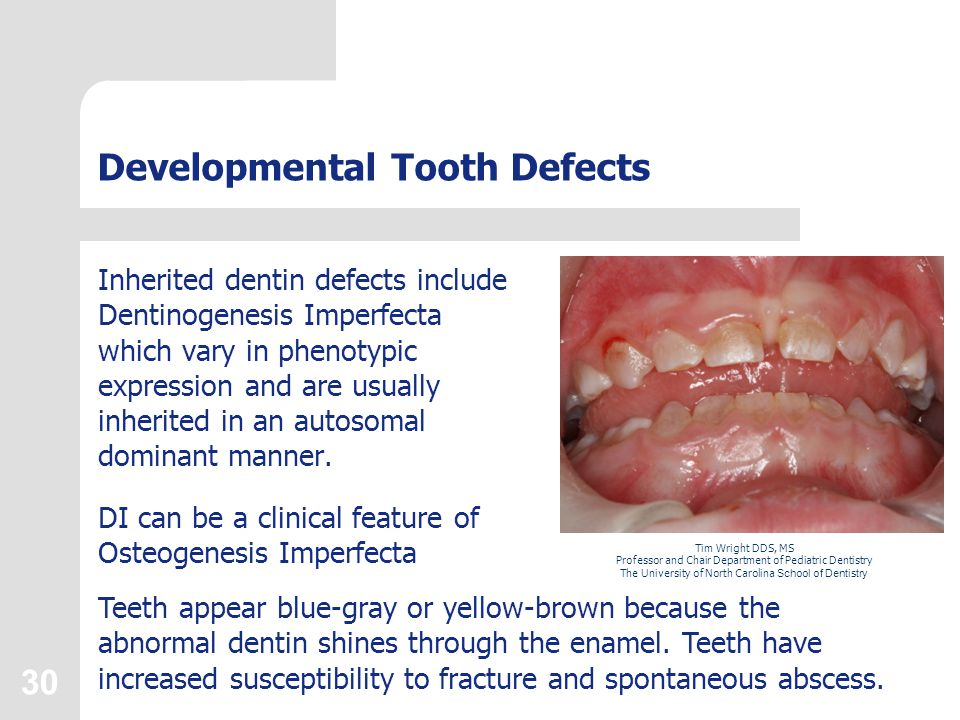 30 Developmental Tooth Defects Inherited dentin defects include Dentinogenesis Imperfecta which vary in phenotypic expression and are usually inherite