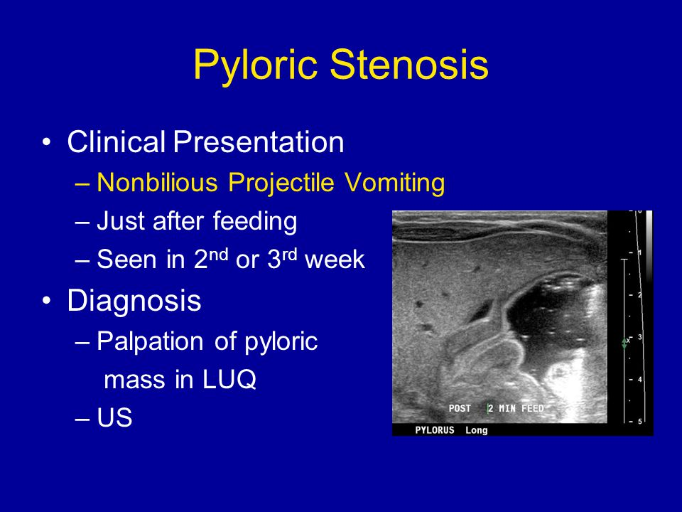 Pyloric Stenosis Clinical Presentation –Nonbilious Projectile Vomiting –Just after feeding –Seen in 2 nd or 3 rd week Diagnosis –Palpation of pyloric mass in LUQ –US