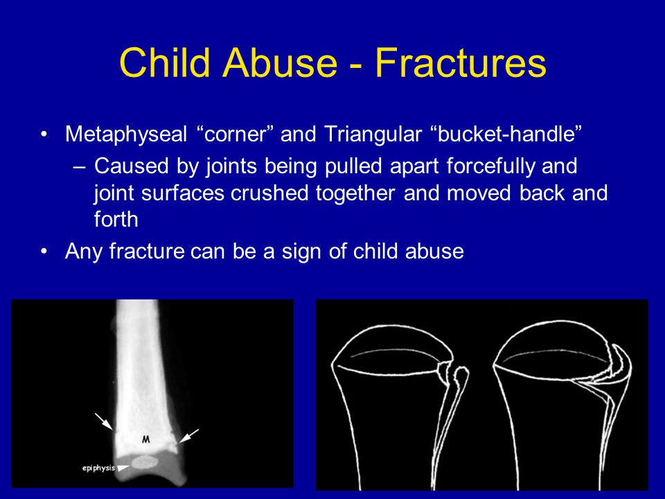 Child Abuse - Fractures Metaphyseal corner and Triangular bucket-handle –Caused by joints being pulled apart forcefully and joint surfaces crushed together and moved back and forth Any fracture can be a sign of child abuse