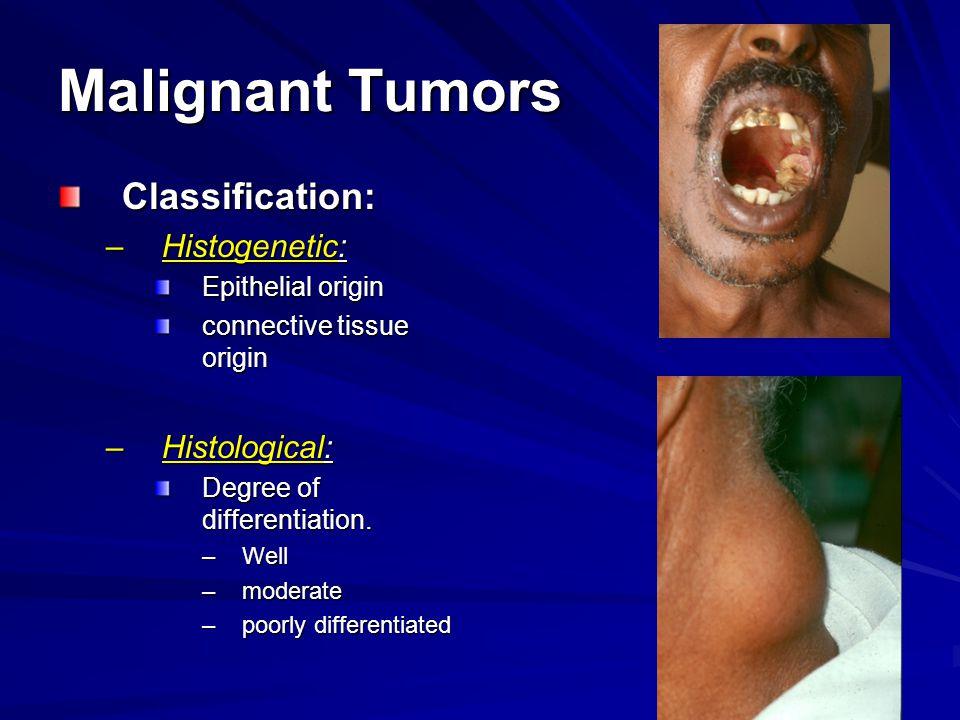 Malignant Tumors Classification: –Histogenetic: Epithelial origin connective tissue origin –Histological: Degree of differentiation.