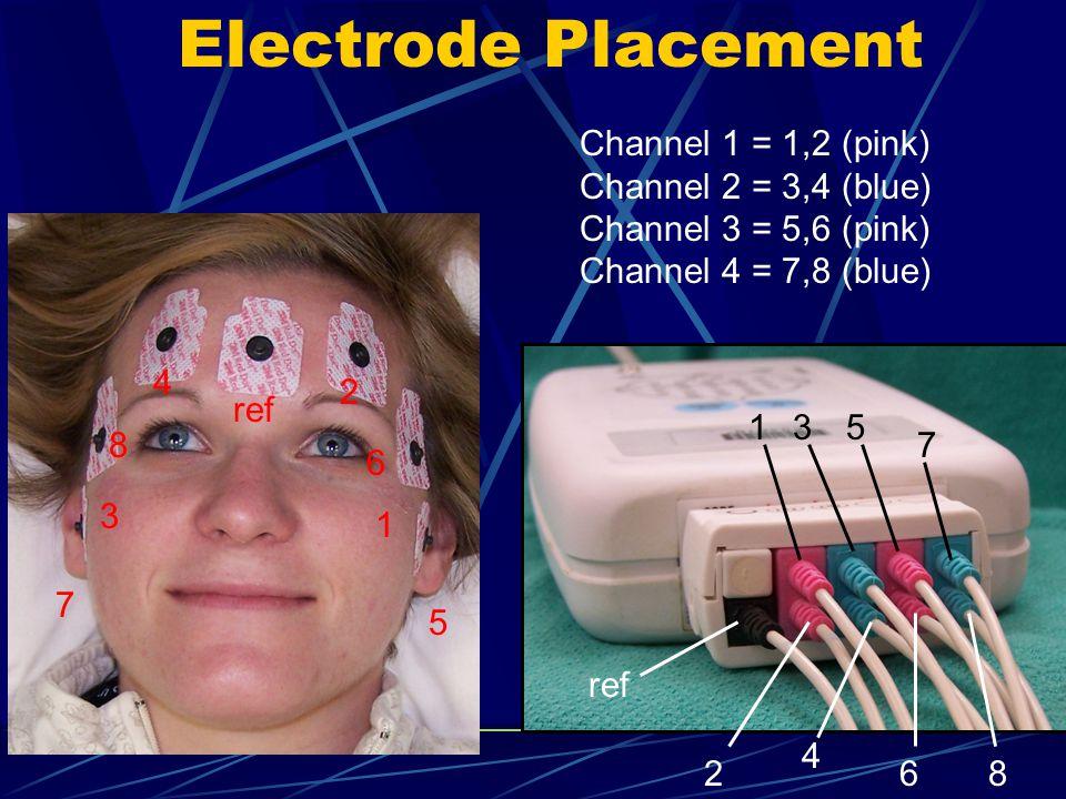 Easy waveform analysis Spikes, PLEDS, seizures, burst suppression, artifacts