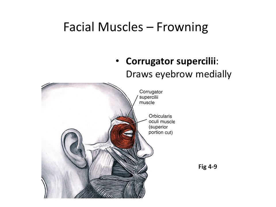 Facial Muscles – Frowning Corrugator supercilii: Draws eyebrow medially Fig 4-9