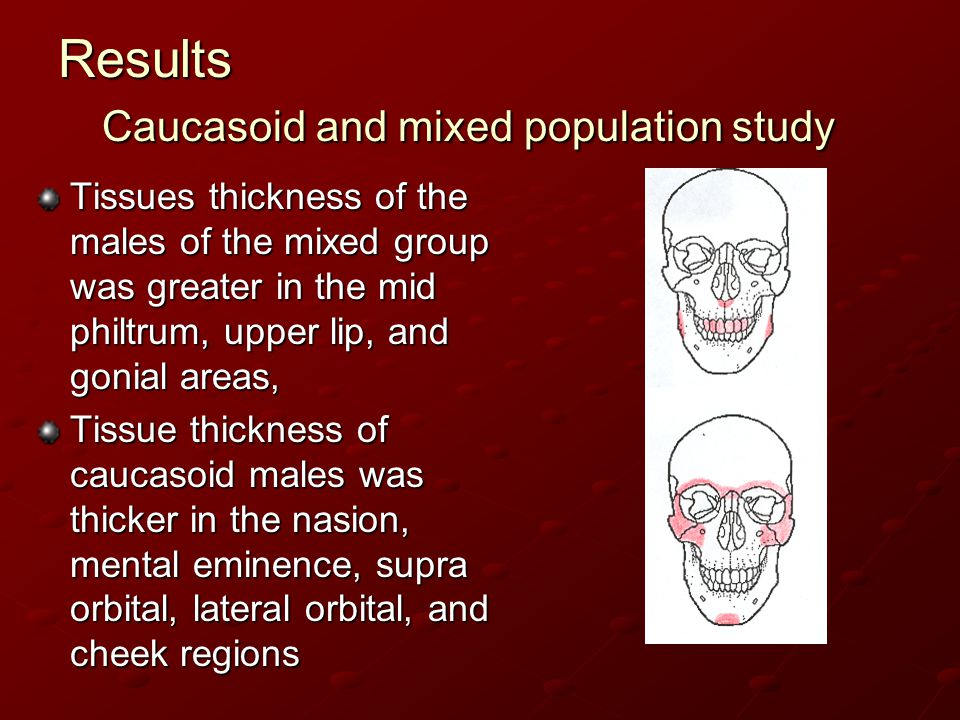 Results Caucasoid and mixed population study Tissues thickness of the males of the mixed group was greater in the mid philtrum, upper lip, and gonial