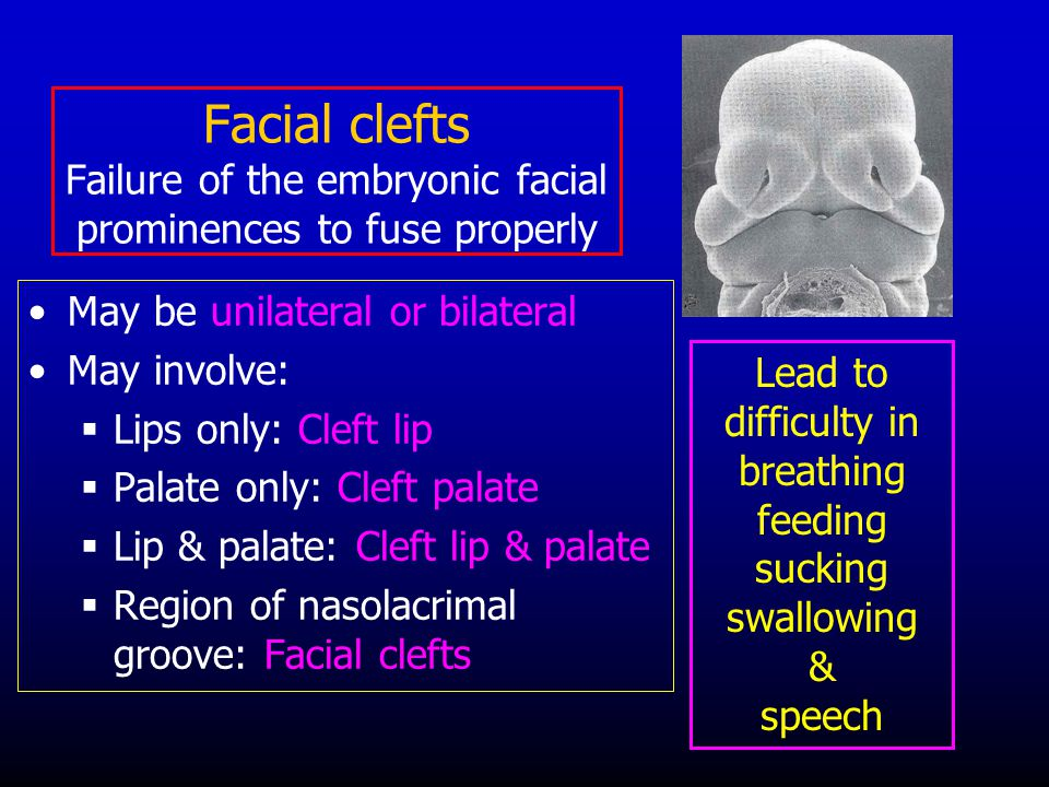 Facial clefts Failure of the embryonic facial prominences to fuse properly May be unilateral or bilateral May involve:  Lips only: Cleft lip  Palate