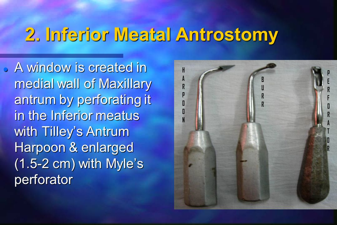 2. Inferior Meatal Antrostomy l A window is created in medial wall of Maxillary antrum by perforating it in the Inferior meatus with Tilley's Antrum H