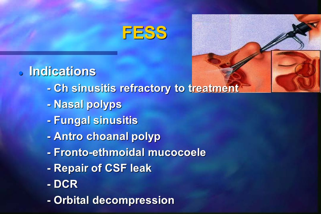 FESS l Indications - Ch sinusitis refractory to treatment - Nasal polyps - Fungal sinusitis - Antro choanal polyp - Fronto-ethmoidal mucocoele - Repair of CSF leak - DCR - Orbital decompression