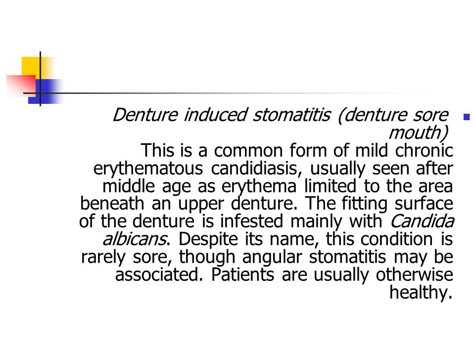 Denture induced stomatitis (denture sore mouth) This is a common form of mild chronic erythematous candidiasis, usually seen after middle age as eryth