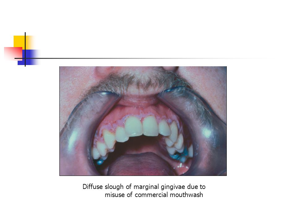 Diffuse slough of marginal gingivae due to misuse of commercial mouthwash