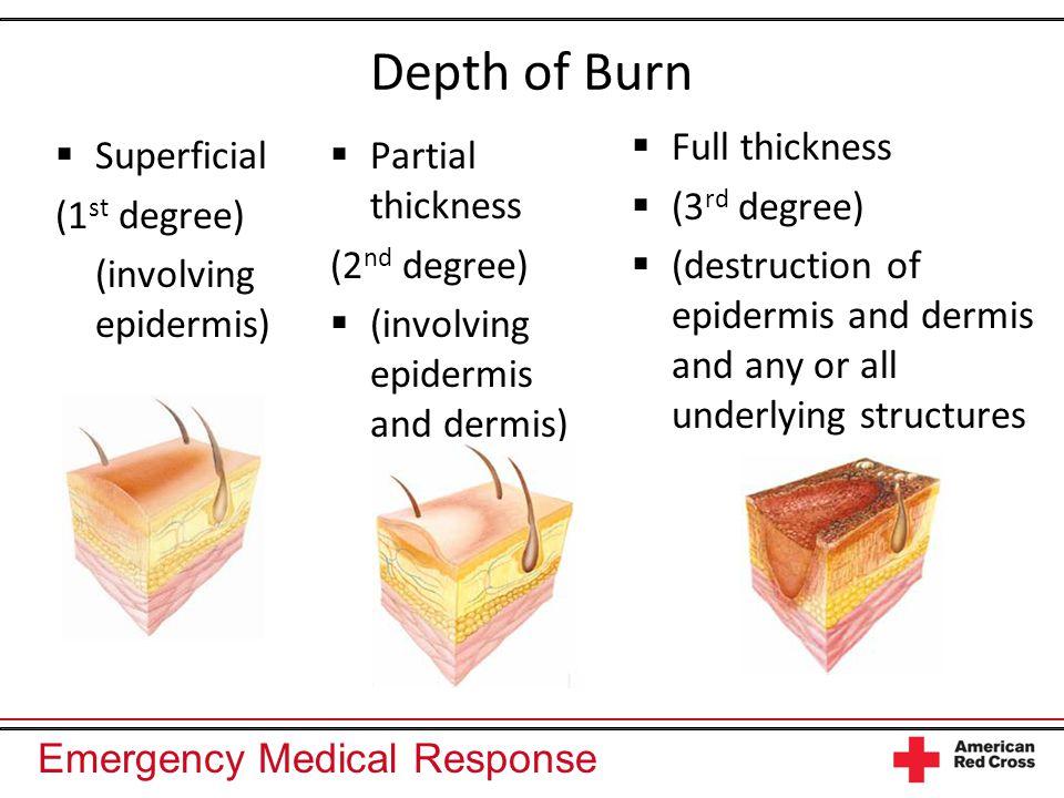 Emergency Medical Response Depth of Burn  Superficial (1 st degree) (involving epidermis)  Partial thickness (2 nd degree)  (involving epidermis an
