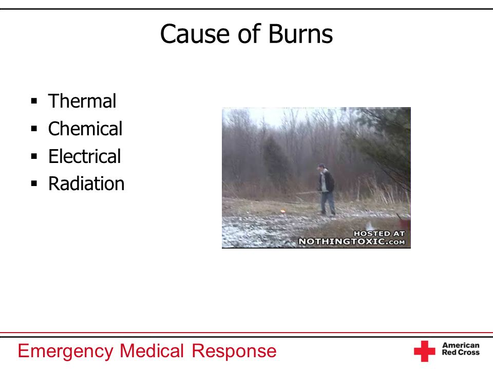 Emergency Medical Response Cause of Burns  Thermal  Chemical  Electrical  Radiation
