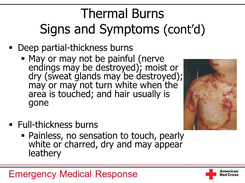 Emergency Medical Response Thermal Burns Signs and Symptoms (cont'd)  Deep partial-thickness burns  May or may not be painful (nerve endings may be