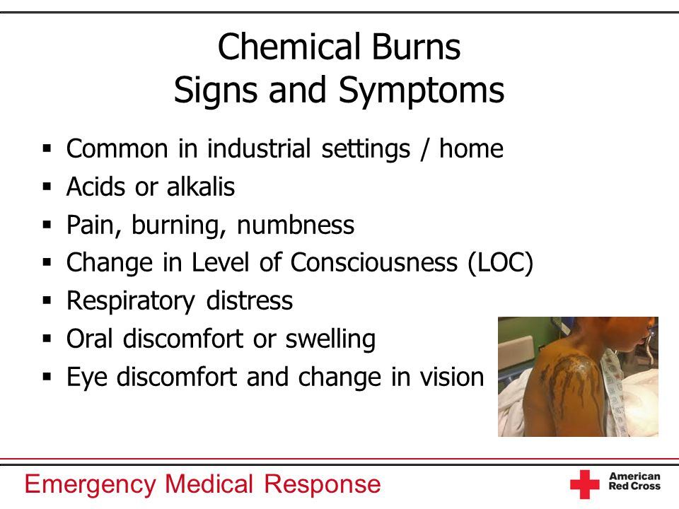 Emergency Medical Response Chemical Burns Signs and Symptoms  Common in industrial settings / home  Acids or alkalis  Pain, burning, numbness  Cha
