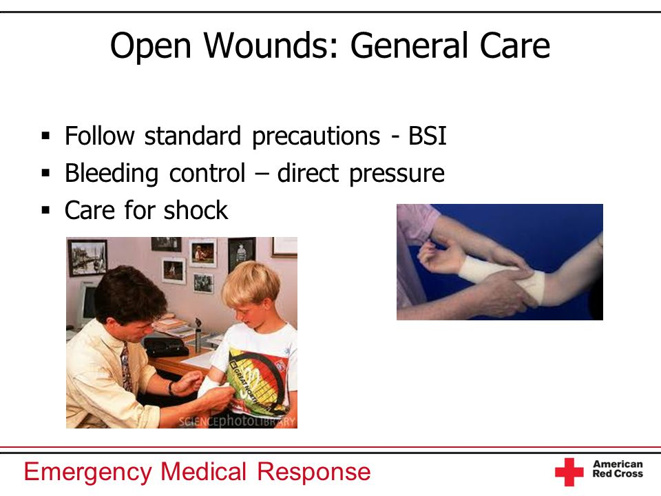 Emergency Medical Response Open Wounds: General Care  Follow standard precautions - BSI  Bleeding control – direct pressure  Care for shock
