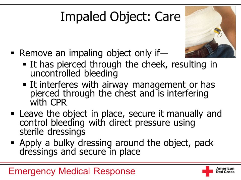 Emergency Medical Response Impaled Object: Care  Remove an impaling object only if―  It has pierced through the cheek, resulting in uncontrolled ble