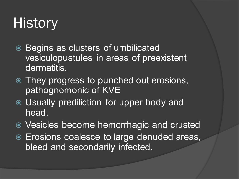 History  Begins as clusters of umbilicated vesiculopustules in areas of preexistent dermatitis.