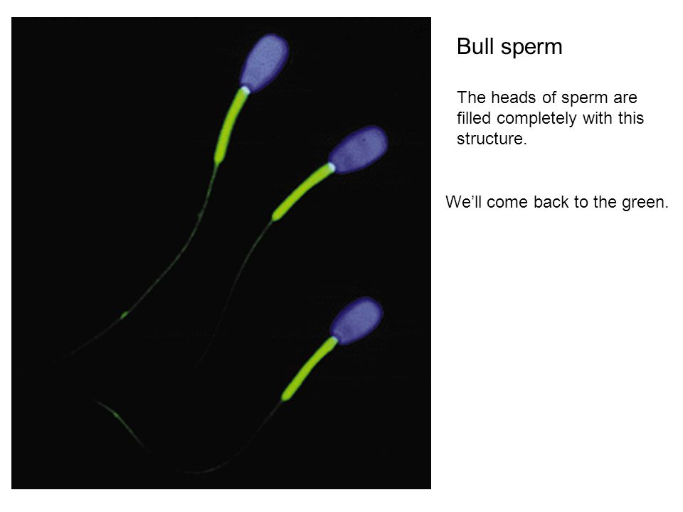 Bull sperm The heads of sperm are filled completely with this structure. We'll come back to the green.