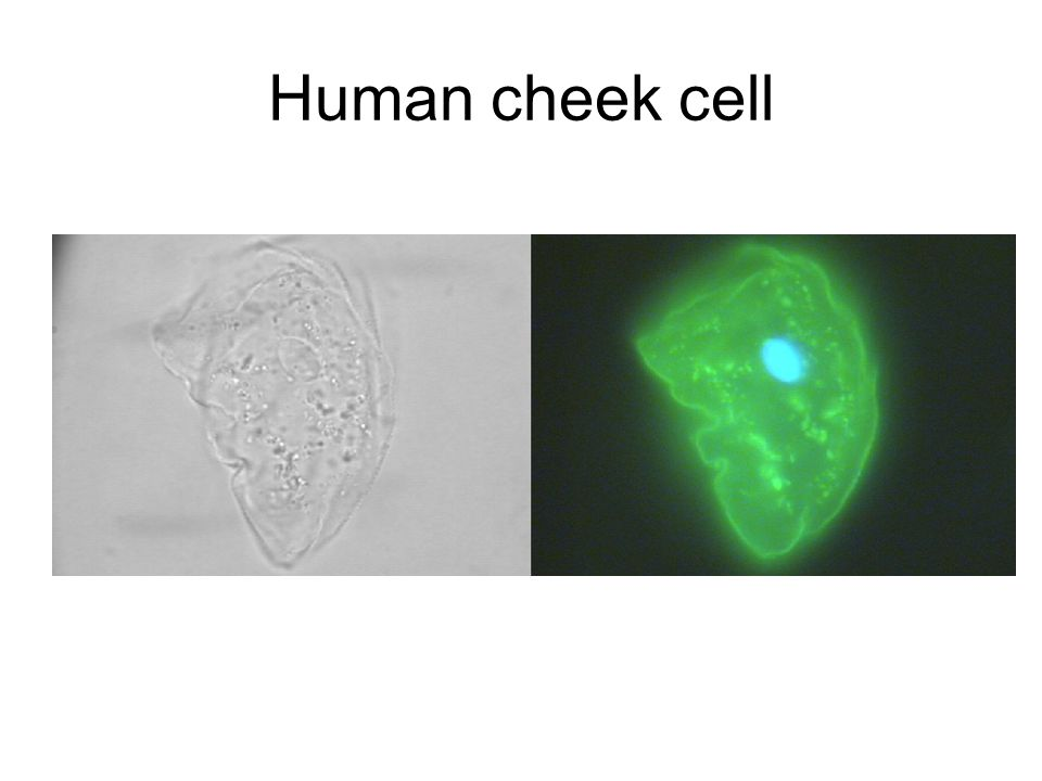 Human cheek cell